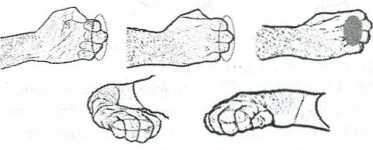 Удары фалангами пальцев